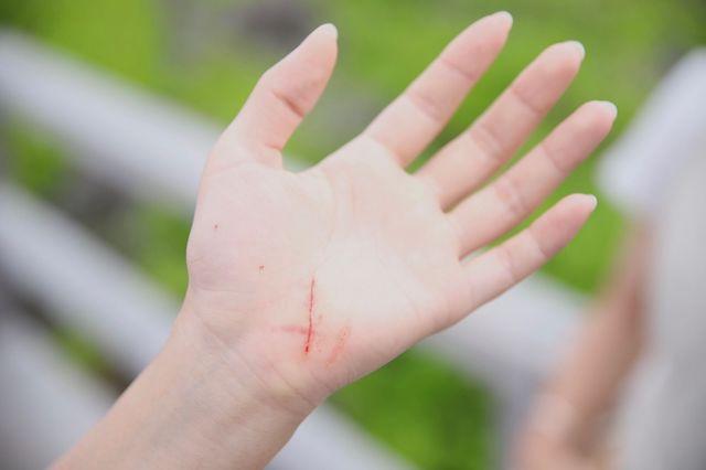 ダイブショップサンライズ 手の怪我